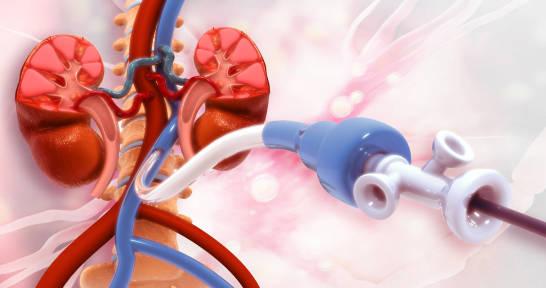 Zwężenie tętnic szyjnych