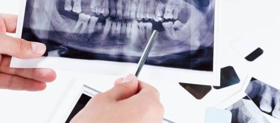 RTG stomatologiczne - podstawa odpowiedniej diagnostyki