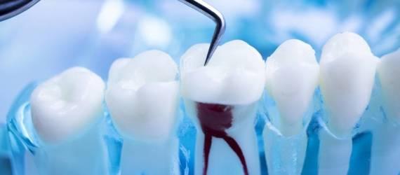 Leczenie kanałowe zębów. Co warto wiedzieć?
